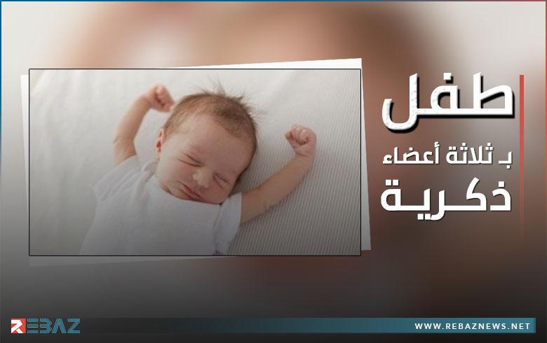 طفل كوردي في دهوك يولد بثلاثة أعضاء ذكرية هي أول حالة من نوعها تسجل في العالم